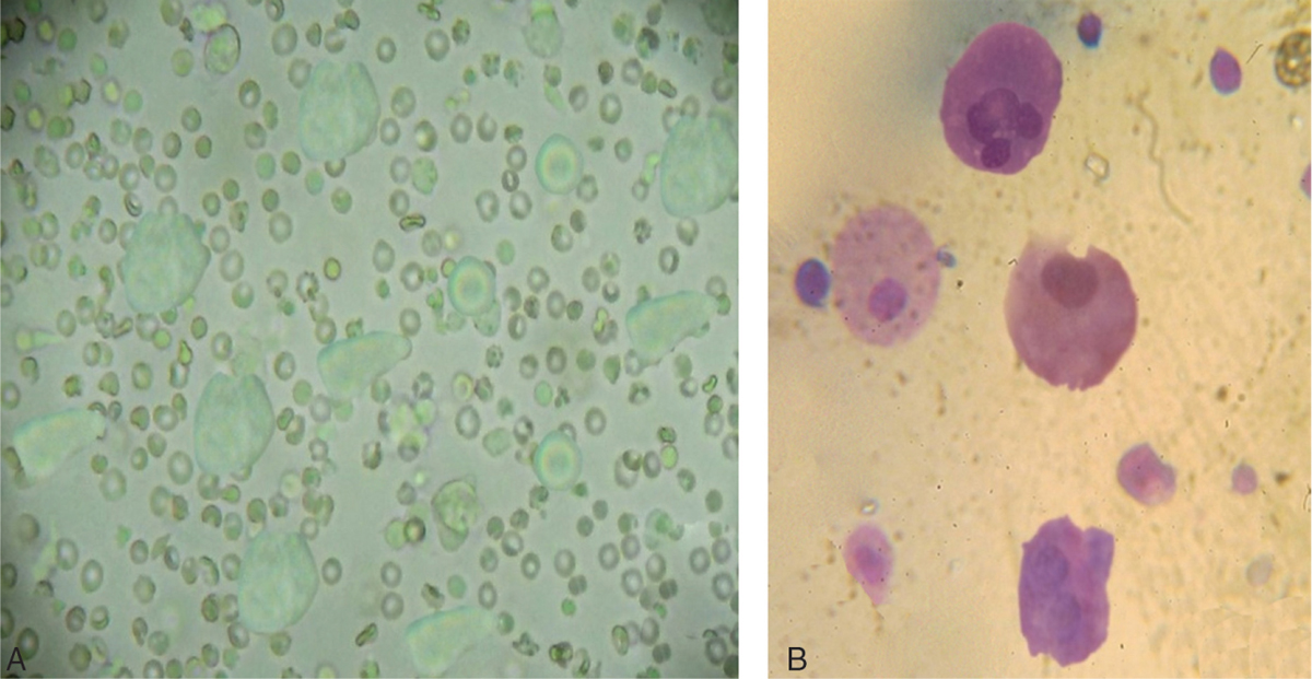 Figure 2 (a) Inverted microscope picture of micromegakaryocytes produced <i>ex vivo</i> by mononuclear cord blood cells on day 7 (b) Light microscope picture of micromegakaryocytes produced <i>ex vivo</i> by mononuclear cord blood cells on day 7. Magnification ×100
